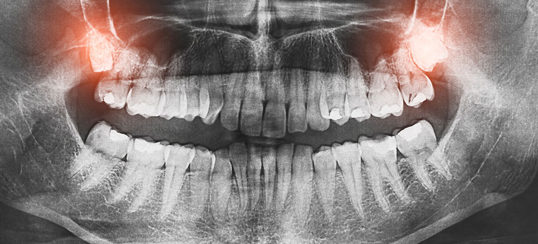 Simple vs. Surgical Tooth Extractions